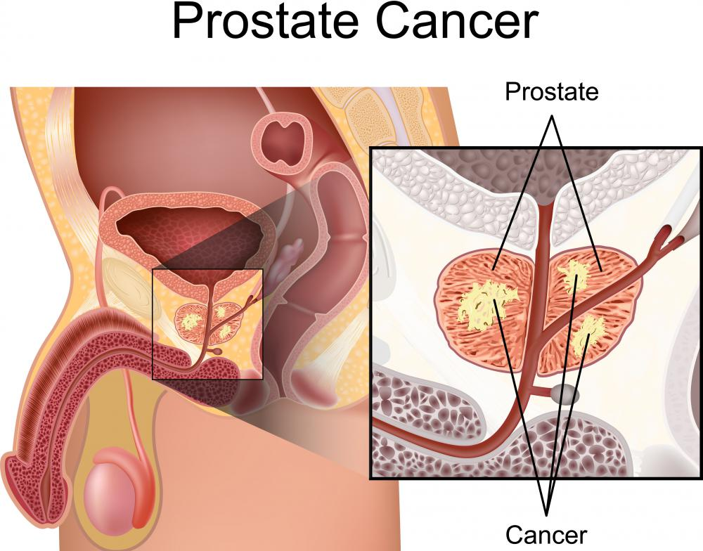 A robotic prostatectomy is a surgery performed to eradicate prostate cancer.