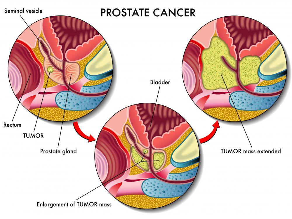 An orchiectomy may improve the survival rate of patients suffering from prostate cancer.