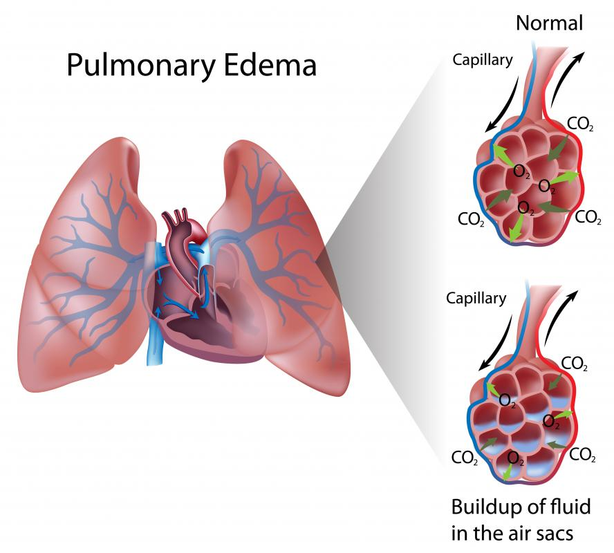 Pulmonary edema refers to a medical condition characterized by the build up of fluid around the lungs.