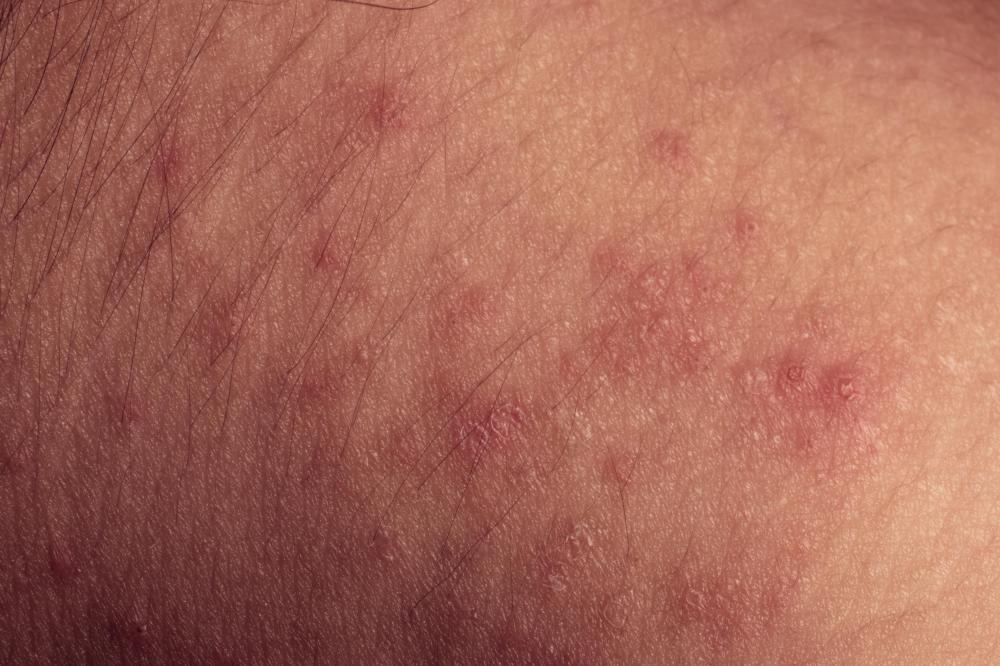 Lichenoid dermatitis causes an itchy purple-colored rash, typically caused by allergic reactions.
