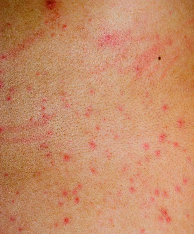 An allergic reaction to sulfamylon may produce an itchy red rash.