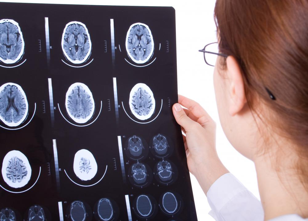 A brain injury may cause an individual to lose the ability of thinking in abstract terms.