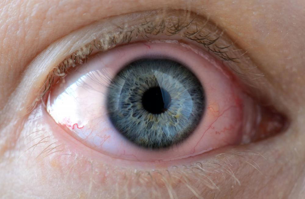 Prolonged exposure to capric acid may cause eye irritation.