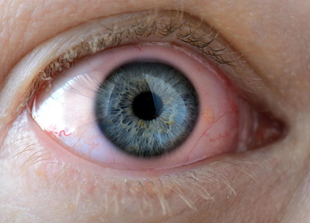 Anyone with vision changes or marked redness in the eye should see a doctor.