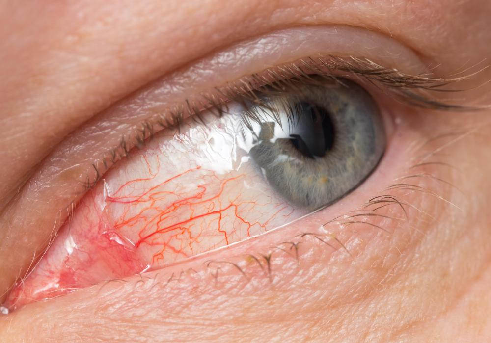 Bacitracin may be used to treat eye infections.