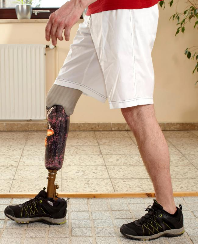 In extreme cases, degloving injuries may be best treated with amputation and a prosthesis that allows the person to recover mobility.
