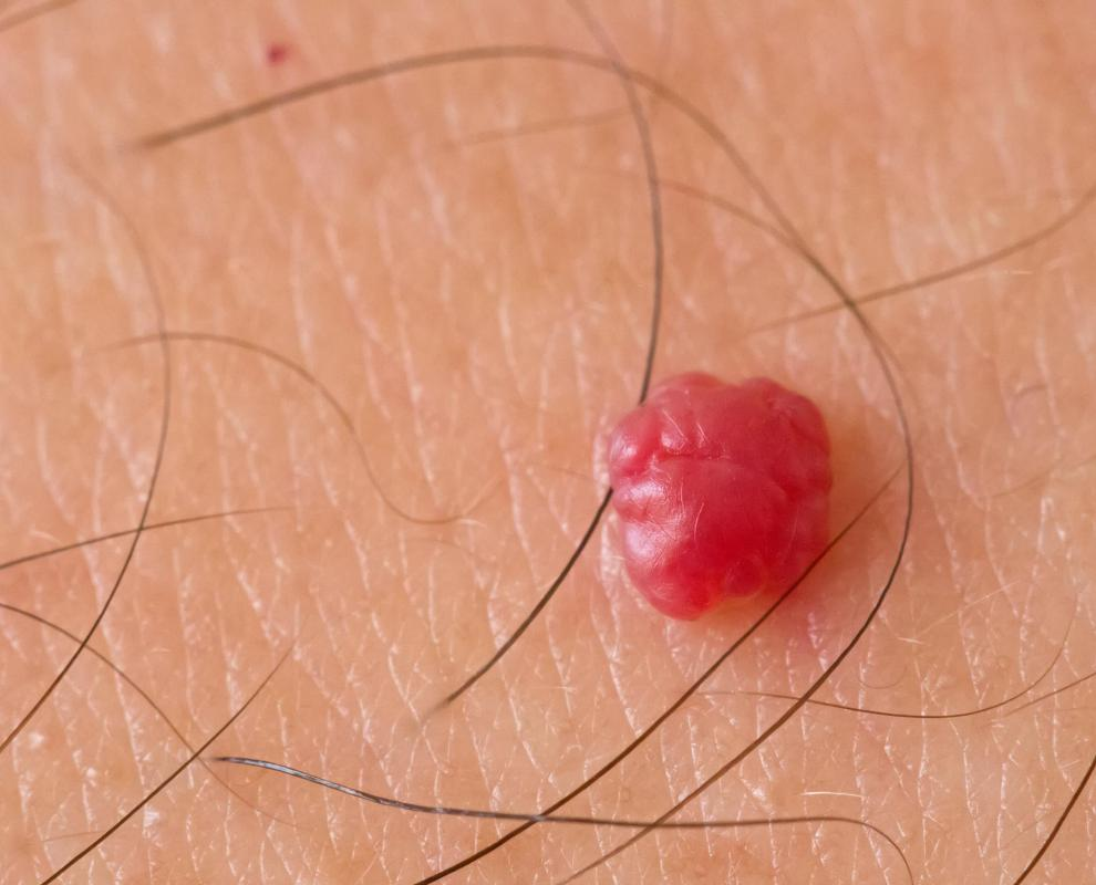 Cherry angiomas pose no health risk, but are often removed for cosmetic reasons.