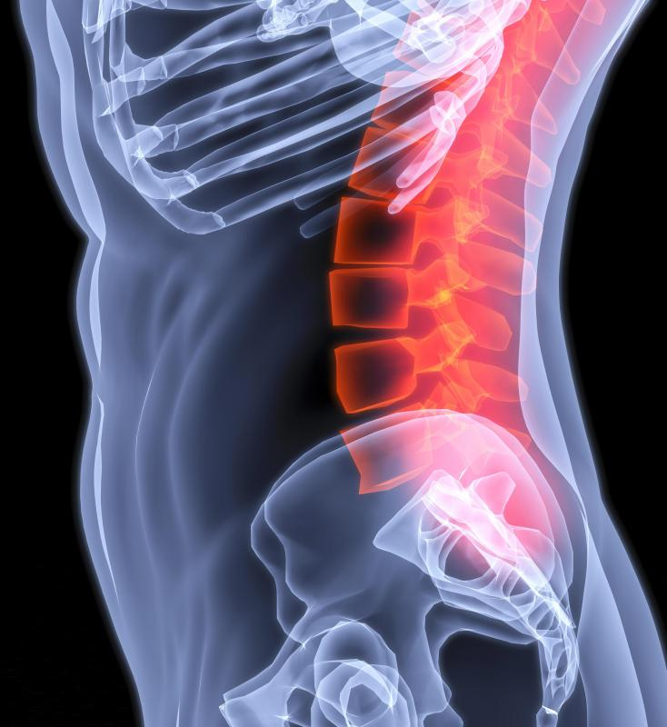 Spinal stenosis can negatively affect the functioning of a person's body.