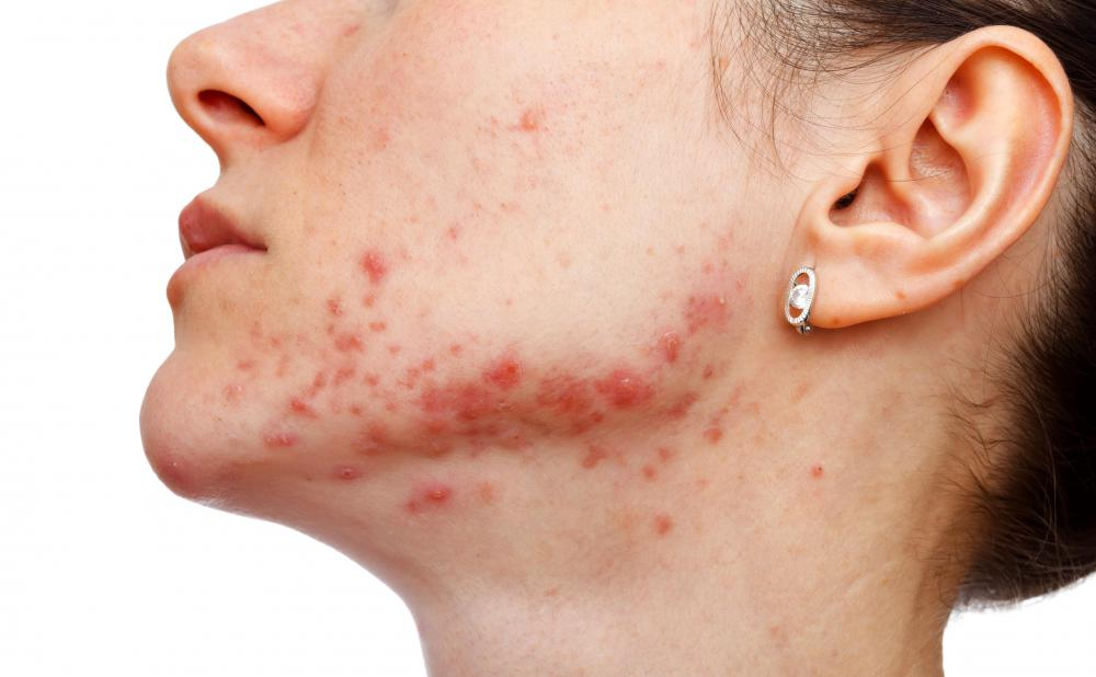 Saline injections can be used as a less expensive treatment for acne scar treatment.