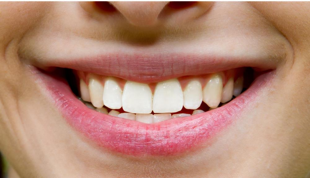 Most people don't have perfectly straight, white teeth.