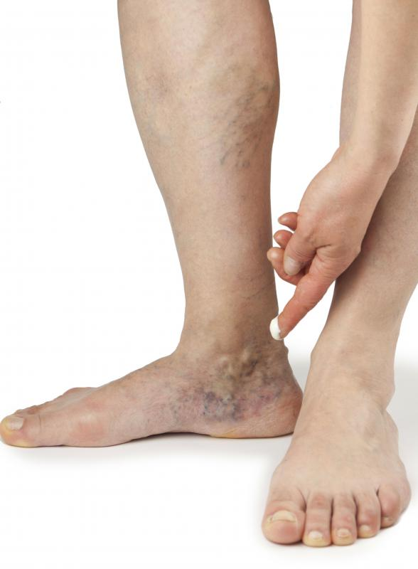 Saline injections may be used to eliminate spider veins.