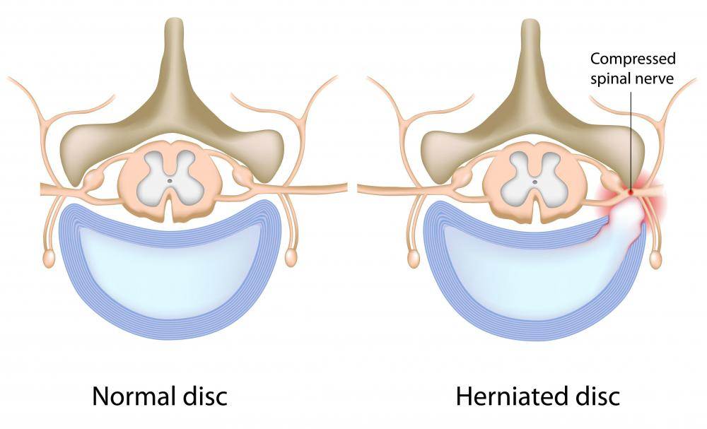 The lower back is the most common place for a herniated disc.