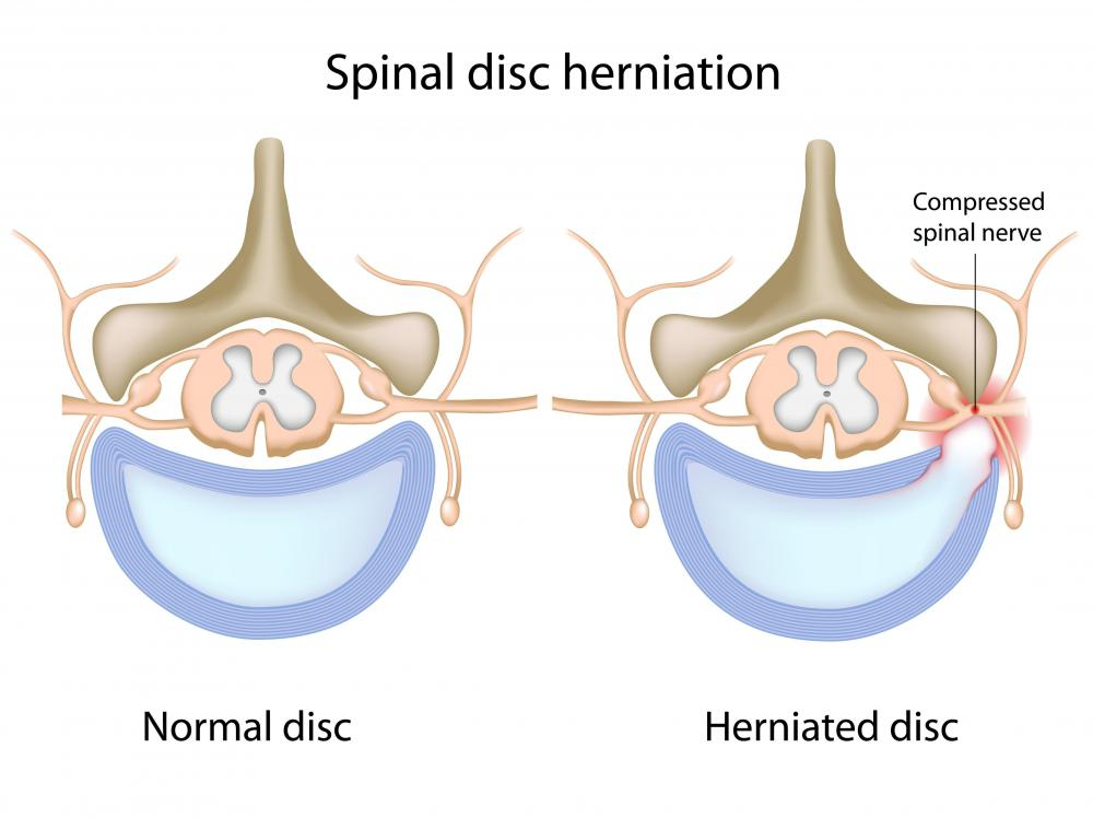 A healthy spine and a spine with a herniated disc.