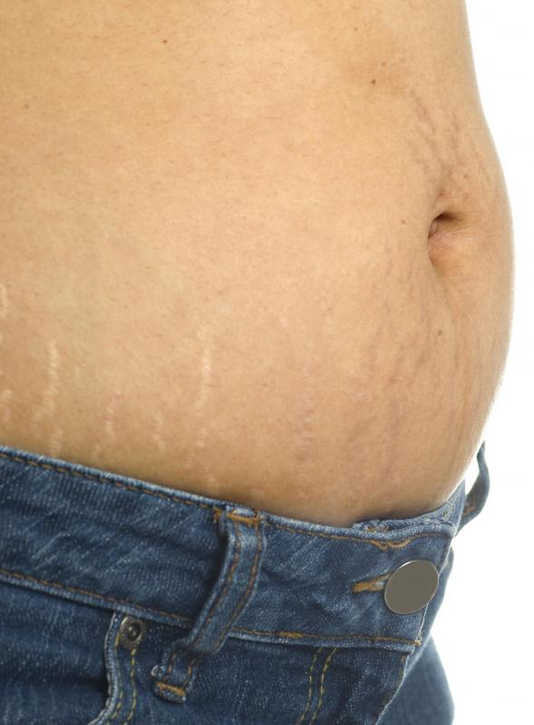 Lotion may be formulated to reduce the appearance of stretch marks.