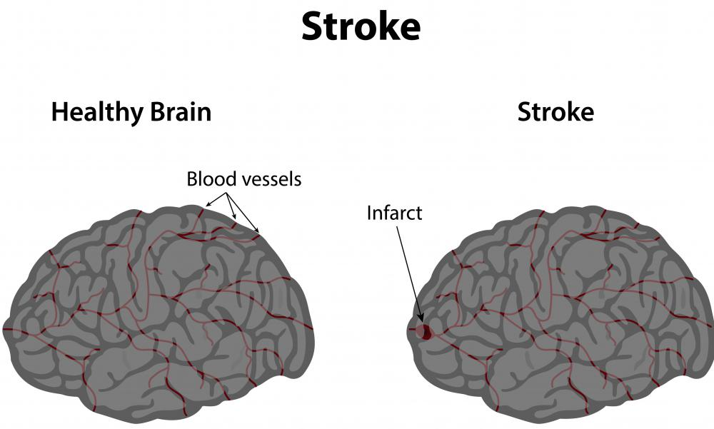 High blood pressure can cause strokes in the basal ganglia region of the brain.