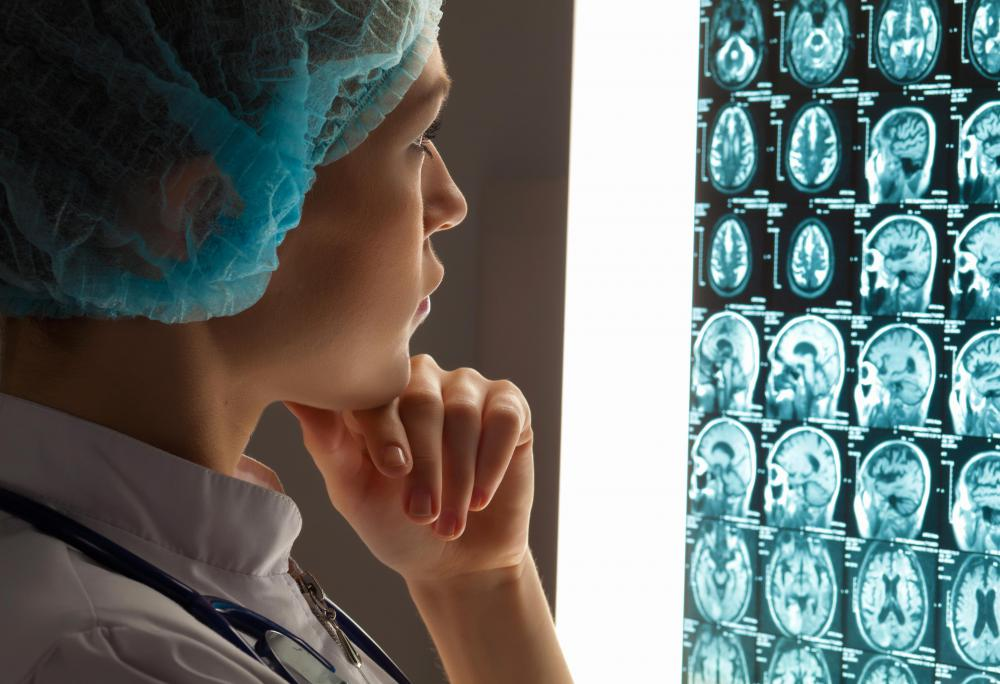 A neurosurgeon or radiation oncologist might perform stereotactic radiosurgery.