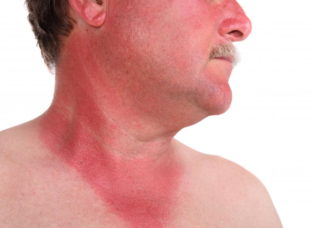 Sunburn makes skin red and painful.