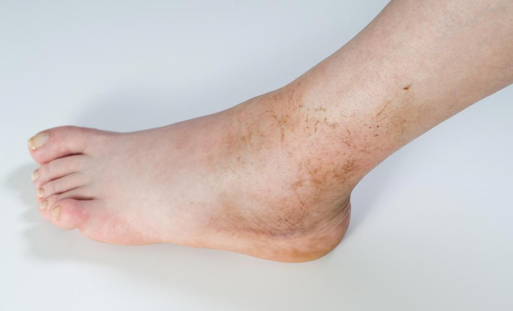 A buildup of fluid in the ankle joint is referred to as an ankle effusion.