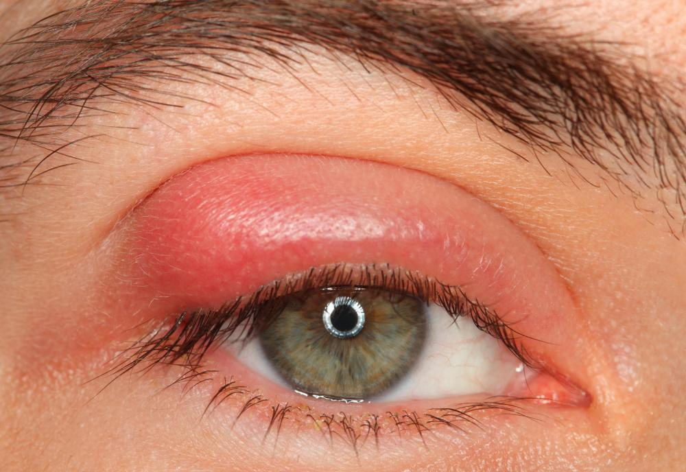 Allergies may cause swollen puffy eyes.