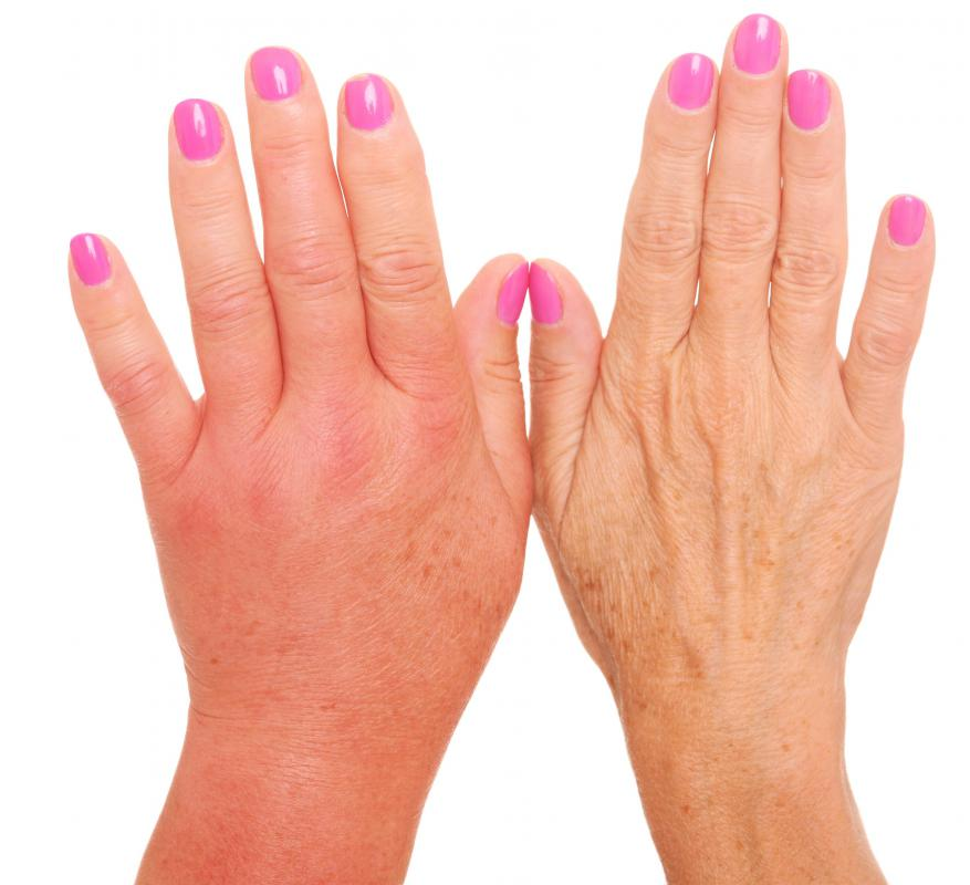 A bruised hand may produce pain and swelling.