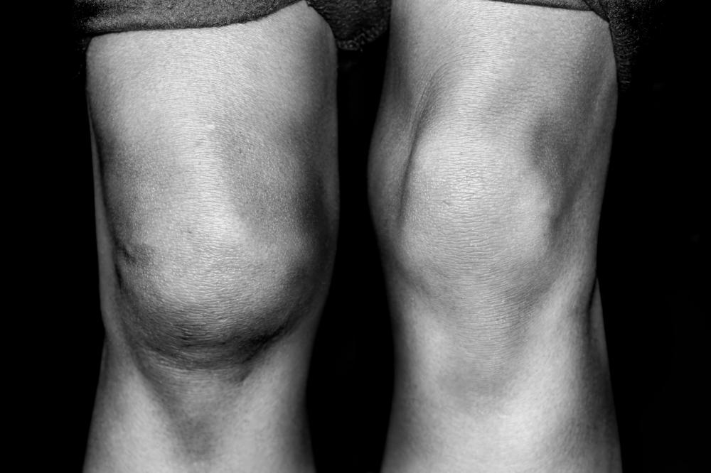 Swollen joints, including the knees, are among the symptoms of lupus.