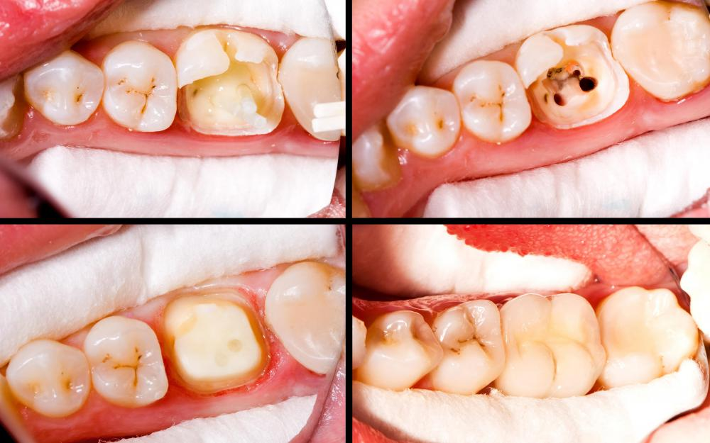 Resin composites are used to correct imperfections, in a color that matches the patient's teeth.