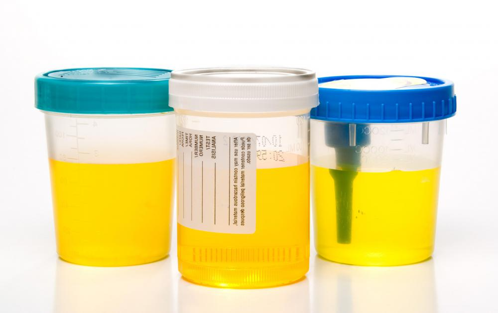 Doctors may require urine samples to diagnose ornithine transcarbamylase deficiency.