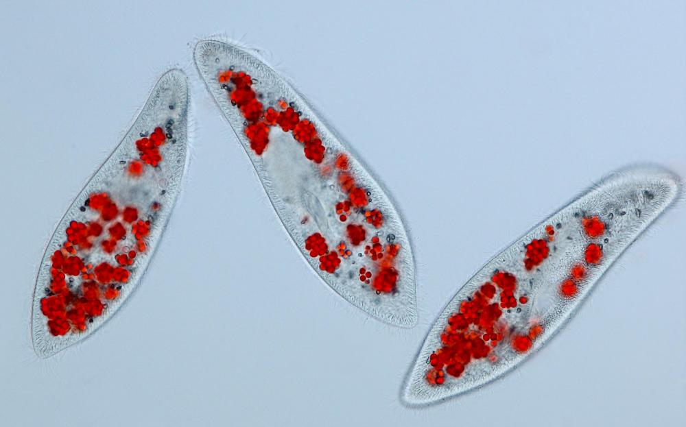 Three paramecia photographed under a microscope.