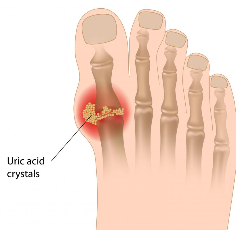Gout is a common cause of puffy toes.