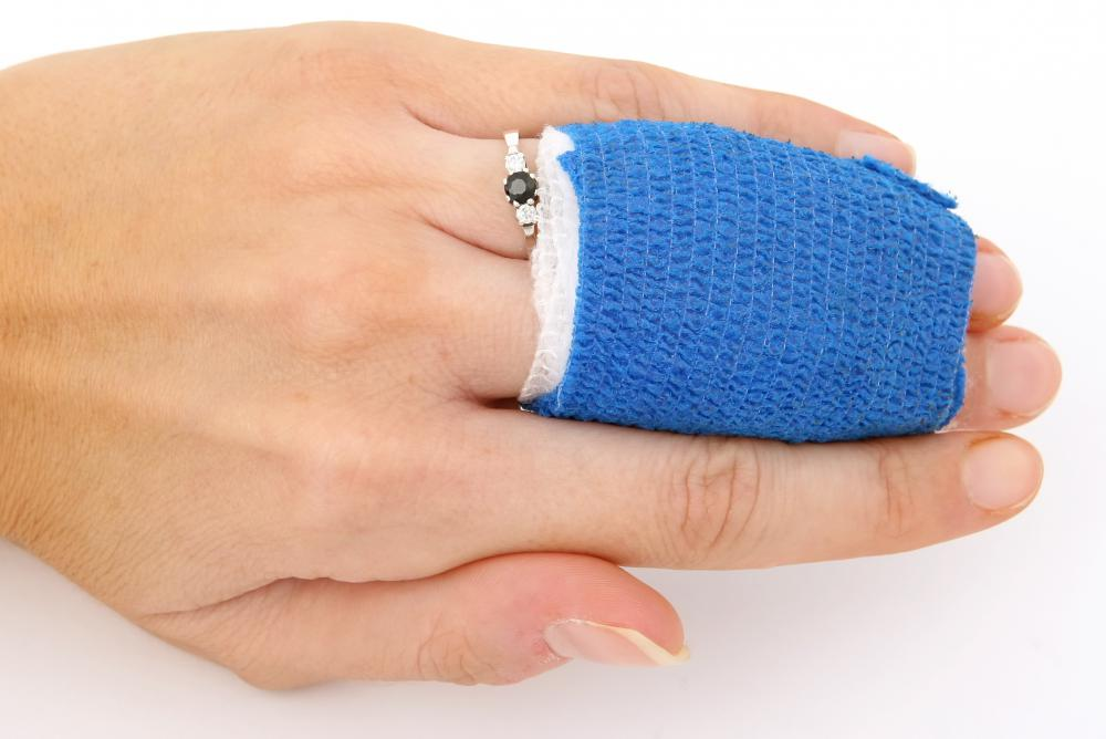 A woman wearing a splint for a a finger fracture.