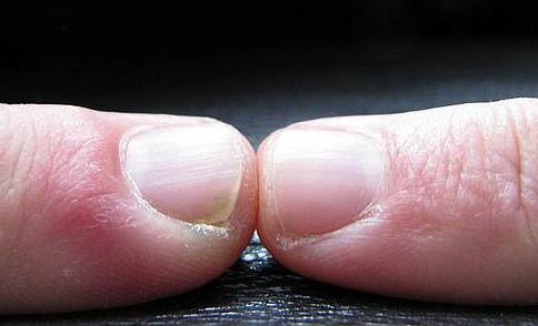 The parallel lines that run from the base to the tip of a fingernail become more prominent with age.