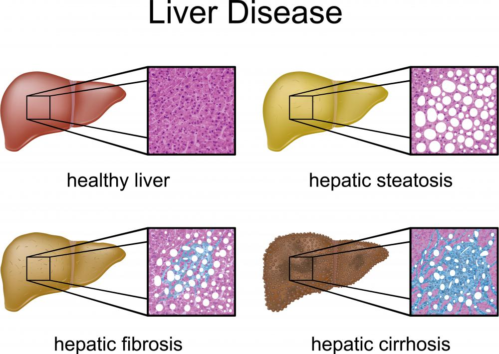 Types of liver disease, including fibrosis.