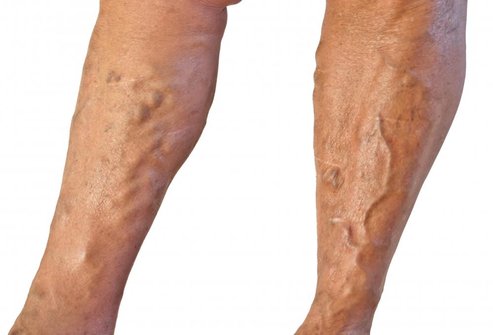 Massage should be avoided where there are varicose veins.