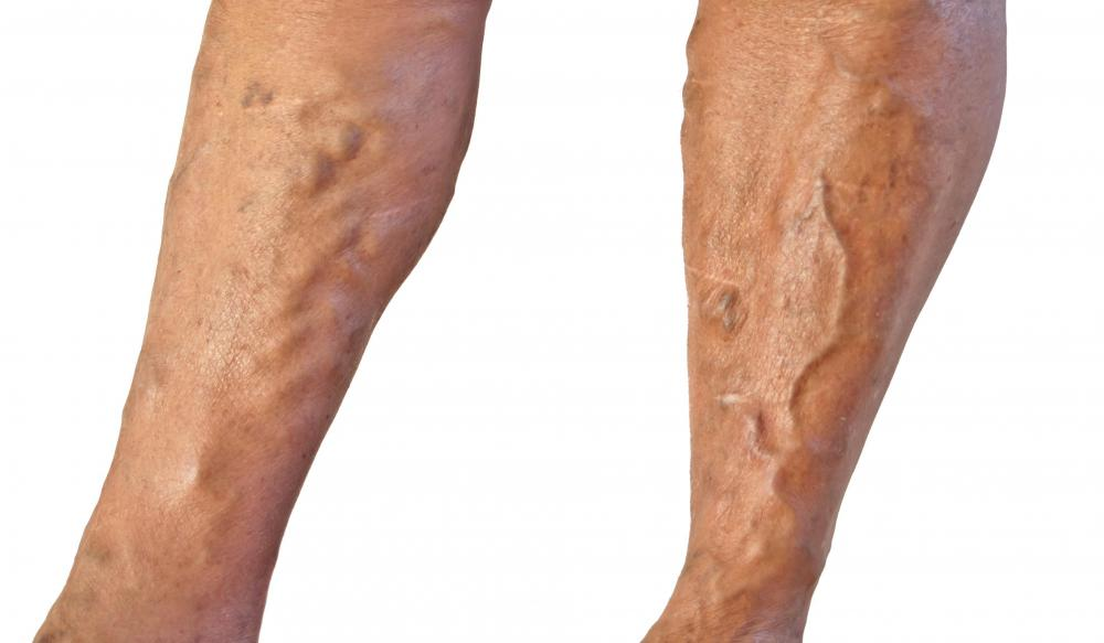 Arnica can be used to treat varicose veins.