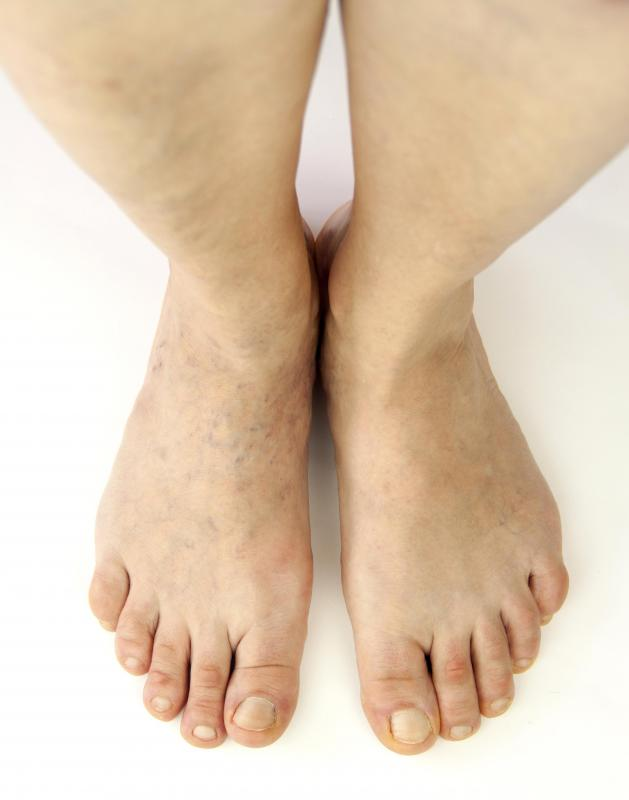 The pathophysiology of cellulitis commonly starts out affecting the lower leg.