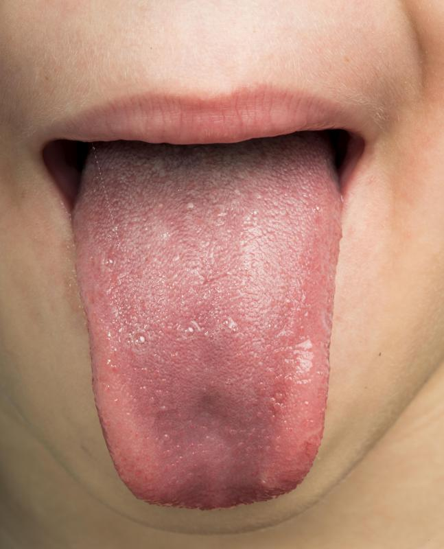 Hpv mouth throat cancer symptoms Hpv mouth cancer signs Hpv on tongue treatment