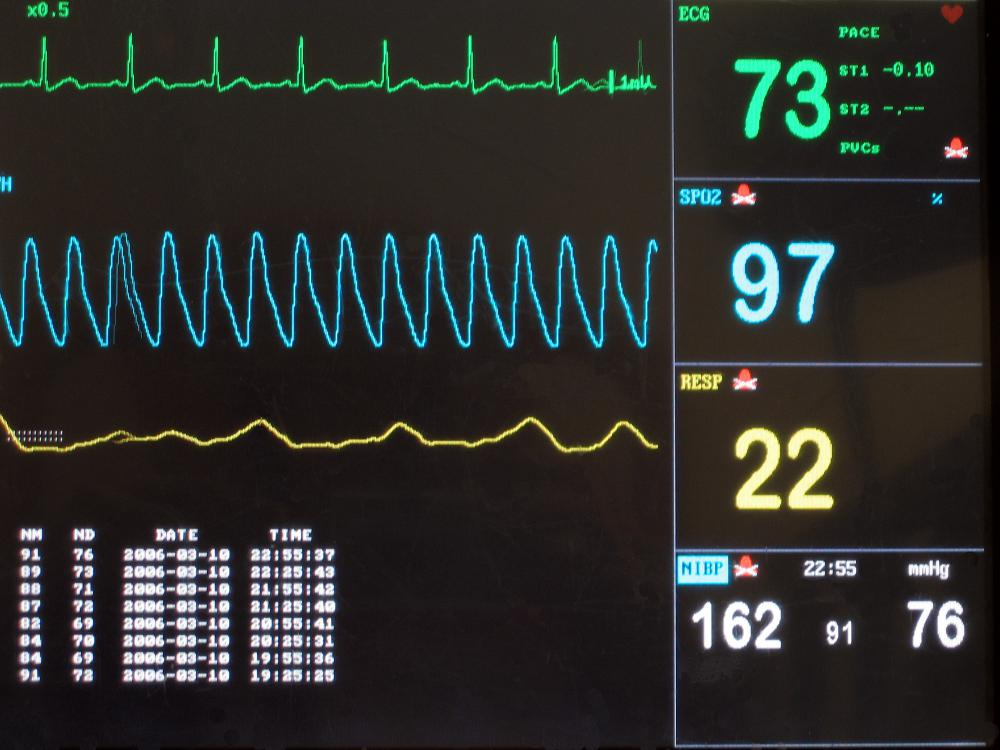 A vital signs monitor is one of the key pieces of equipment used in caring for those on life support. It displays real-time feedback of a person's condition.