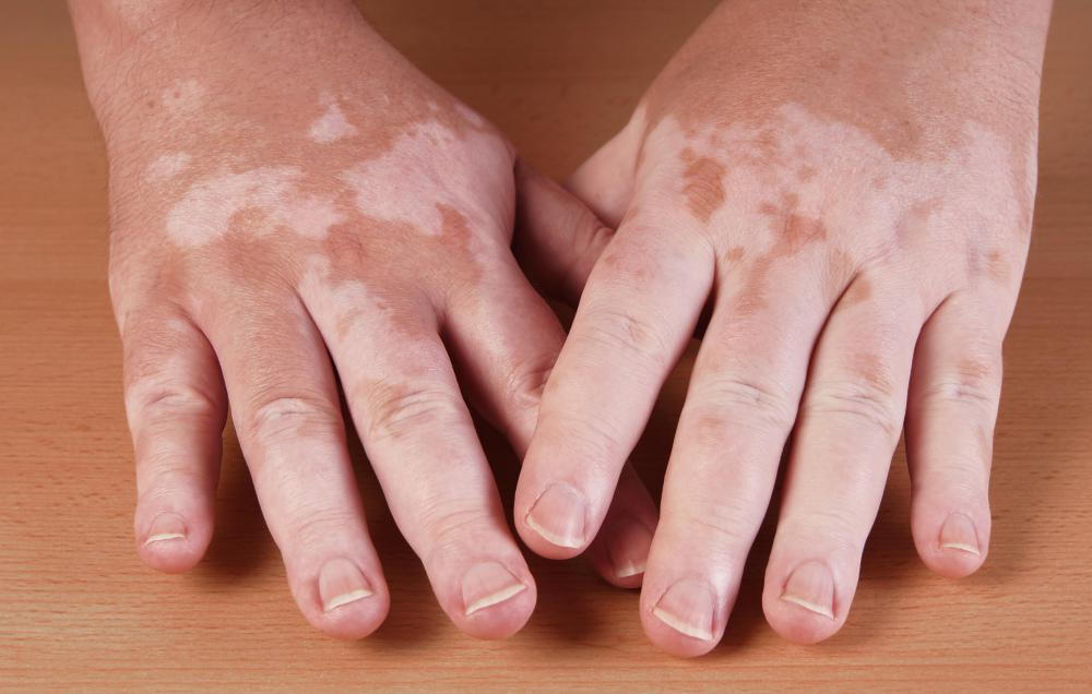 Phenylalanine can  be helpful in the treatment of vitiligo.