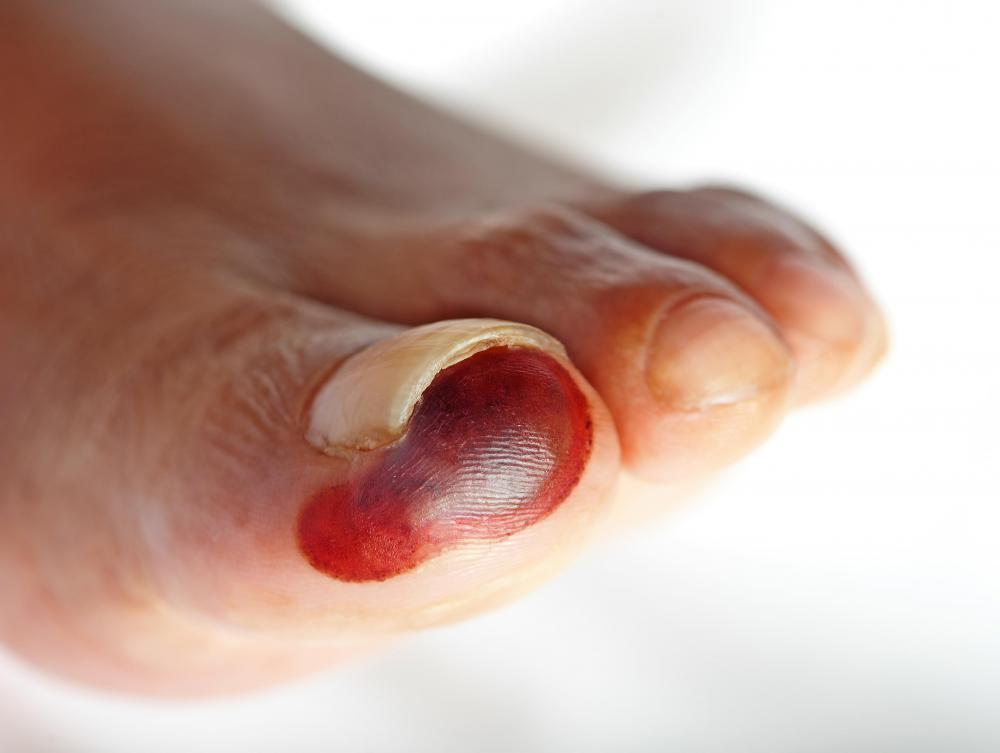 Many runners get blood blisters on their toes and feet.