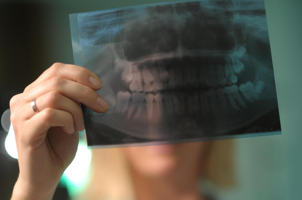 Digital radiography technology allows dentists to take several X-rays of patients' teeth without exposing them to dangerous levels of radiation.