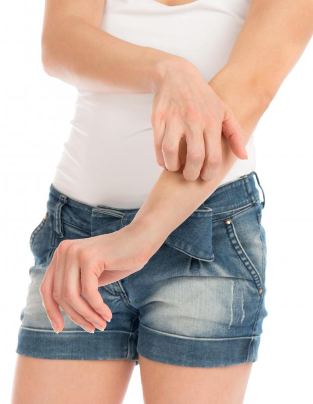 Some patients may experience itching as a result of using urine as an antiseptic.