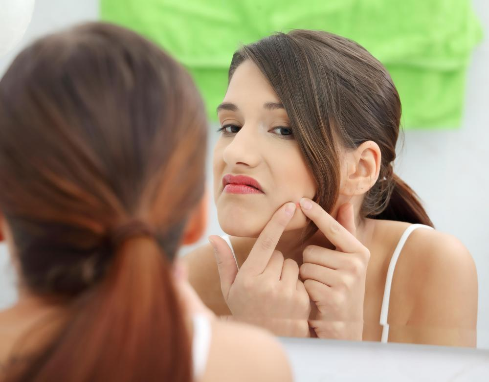 Most people feel self conscious about pimples.