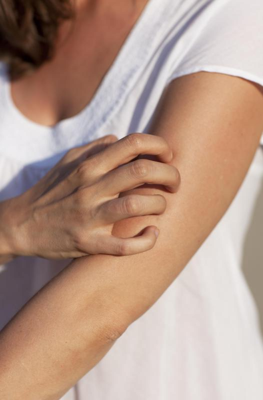 Itchy skin can be the result of an ibuprofen allergy.