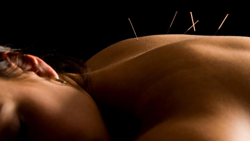 During an acupuncture session, the patient lies flat on their back while the practitioner inserts needles into their body.