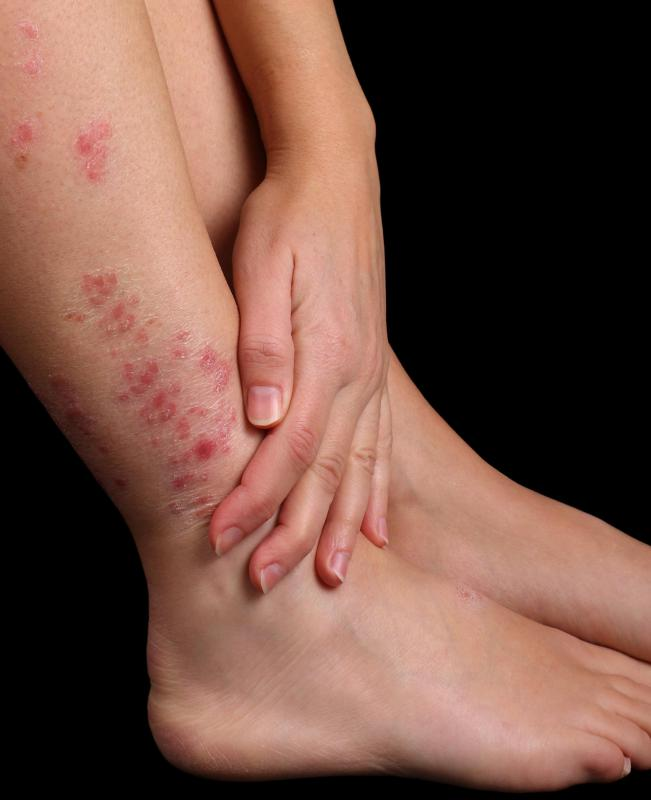 Itching, redness and skin rash are common symptoms of fungal infection.