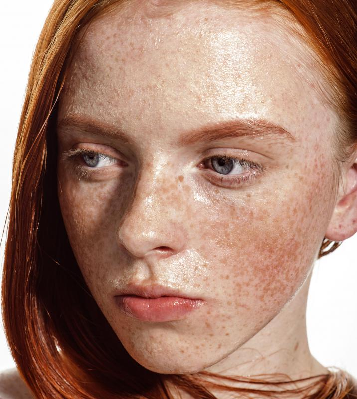 A woman with freckles on her face.