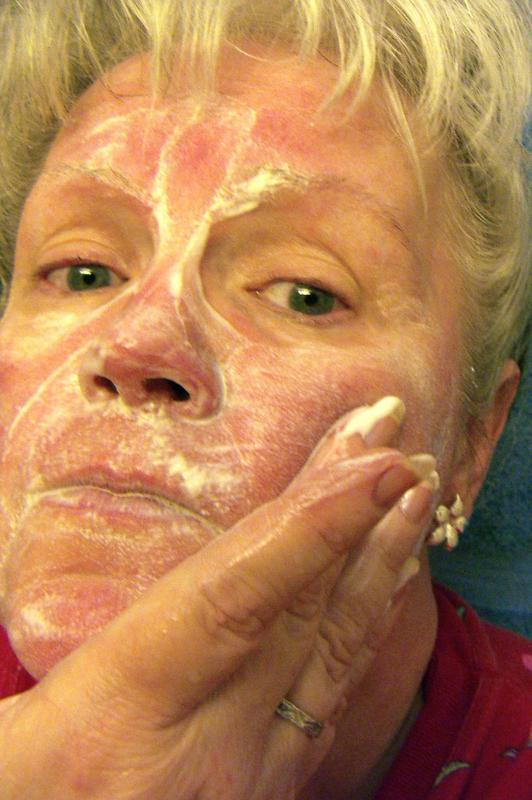It is thought that perioral dermatitis is actually a form of rosacea.