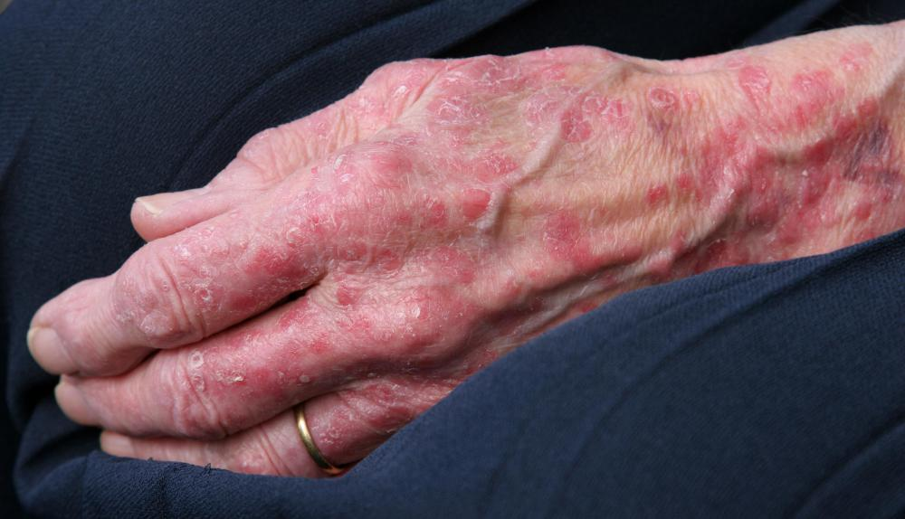 Those with skin allergies that cause itchy, red rashes should use lanolin-free products.