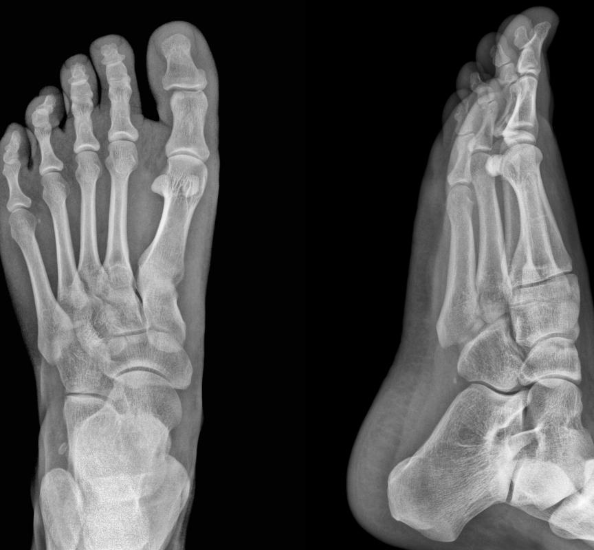 An x-ray can be used to investigate the cause of puffy toes.