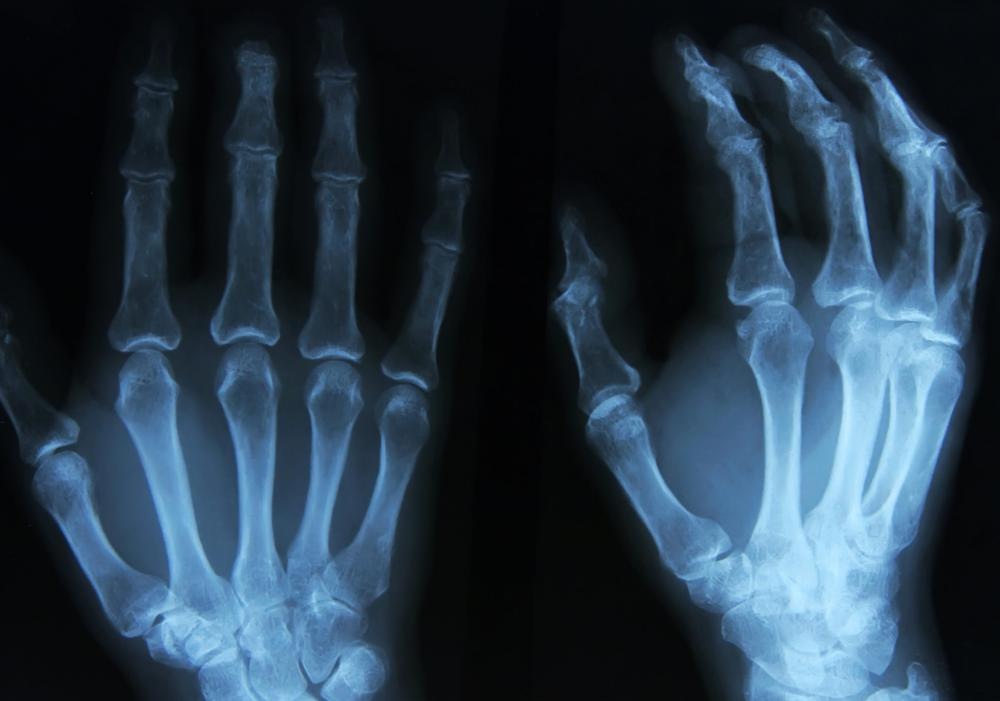 An X-ray should show the extent of an intra-articular fracture.